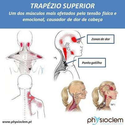 Excepcional Cefaleia de Tensão provocada pelo músculo Trapézio Superior  JP44